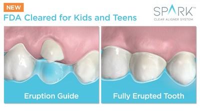 Mixed Dentition